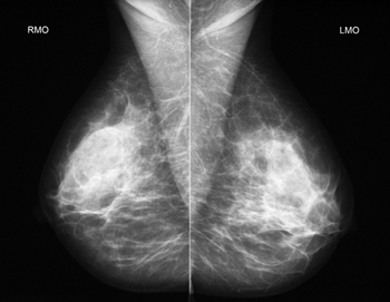 diagnostic mammogram may show that what appeared to be an ...